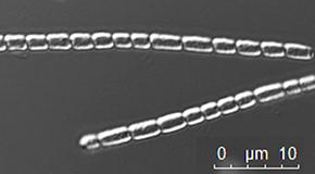 New Bacteria Strain